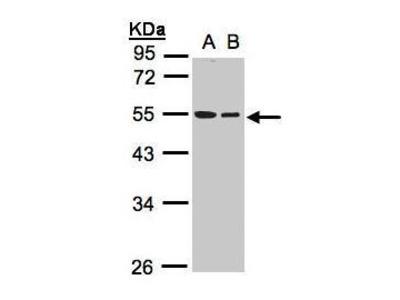 Rabbit Polyclonal antibody to beta Tubulin (tubulin, beta 1)