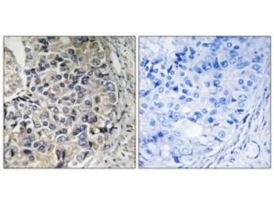 Rabbit polyclonal anti-CMC1 antibody