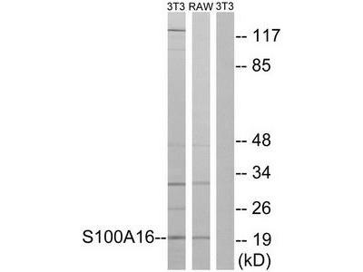 Rabbit polyclonal anti-S100A16 antibody