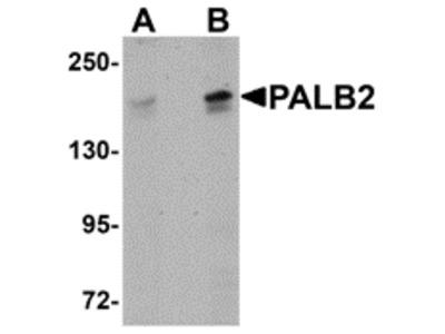 Rabbit Polyclonal PALB2 Antibody