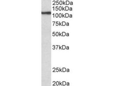 Goat Polyclonal Antibody against thyroid peroxidase
