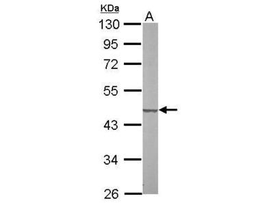 Rabbit Polyclonal antibody to SUCLG2 (succinate-CoA ligase, GDP-forming, beta subunit)