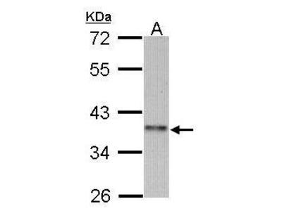 Rabbit polyclonal antibody to Cyclin-I2 (cyclin I family, member 2)