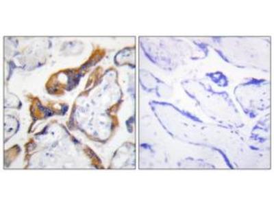 Rabbit polyclonal anti-PHLA2 antibody