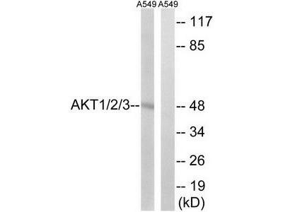 Rabbit polyclonal AKT1/2/3 (Ab-315/316/312) antibody