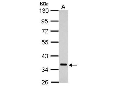Rabbit Polyclonal antibody to SEC61A1 (Sec61 alpha 1 subunit (S. cerevisiae))
