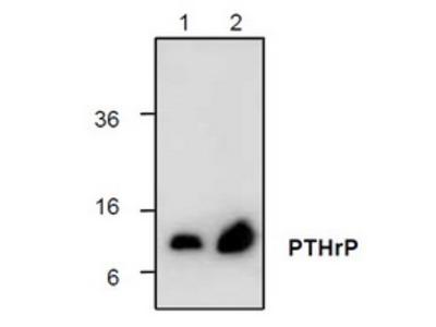 Rabbit polyclonal anti-PTHrP antibody