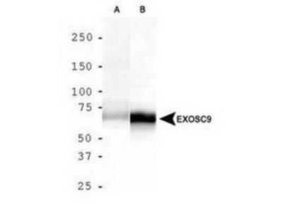 Rabbit Polyclonal Exosome Component 9 Antibody