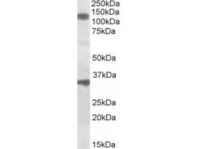 Goat Anti-CCAR1 Antibody