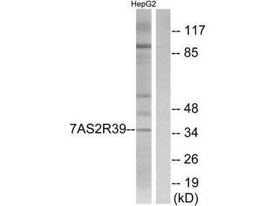 Rabbit polyclonal anti-TAS2R39 antibody