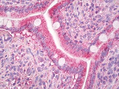 MCP-2 / CCL8 Mouse Monoclonal Antibody
