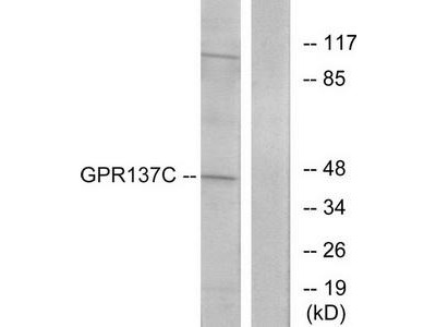 Rabbit polyclonal anti-GPR137C antibody