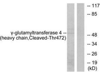 Rabbit polyclonal Gamma-glutamyltransferase 4 (heavy chain, Cleaved-Thr472) antibody
