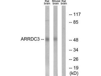 Rabbit polyclonal anti-ARRDC3 antibody