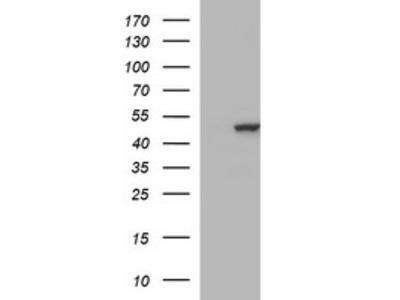 TUBB2B mouse monoclonal antibody,clone OTI5D3