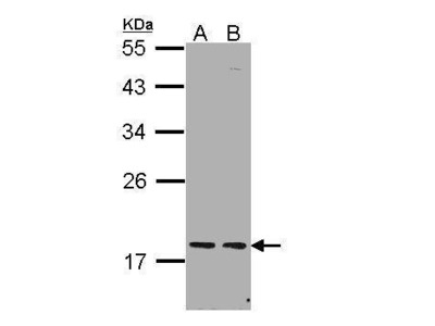 Rabbit polyclonal antibody to PCNP (PEST proteolytic signal containing nuclear protein)