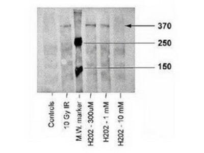 Mouse Monoclonal ATM Kinase [p Ser1981] Antibody (10H11.E12)