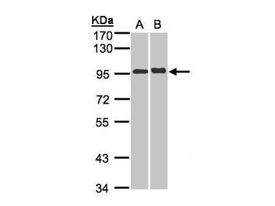 Rabbit polyclonal antibody to IL-12 Receptor beta2 (interleukin 12 receptor, beta 2)