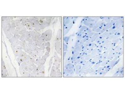 Rabbit polyclonal anti-ALPK2 antibody