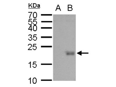 Rabbit Polyclonal antibody to UBE2B (ubiquitin-conjugating enzyme E2B (RAD6 homolog))