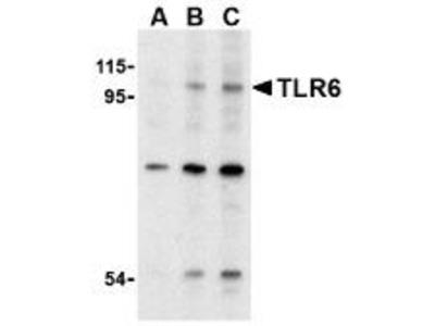 Rabbit Polyclonal TLR6 Antibody
