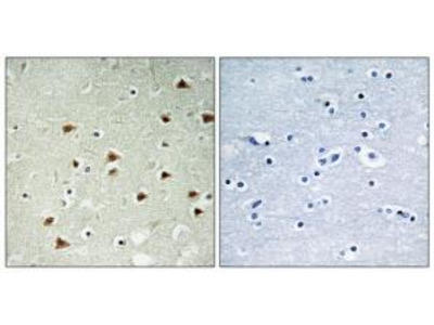 Rabbit polyclonal anti-ABHD14B antibody