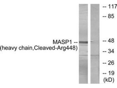 Rabbit polyclonal MASP1 (heavy chain, Cleaved-Arg448) antibody