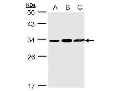 Rabbit polyclonal antibody to TATDN1 (TatD DNase domain containing 1)