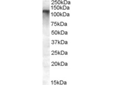 Goat Anti-MRP8 / ABCC11 Antibody