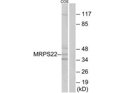 Rabbit polyclonal anti-MRPS22 antibody