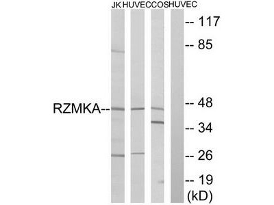 Rabbit polyclonal anti-RIMKA antibody