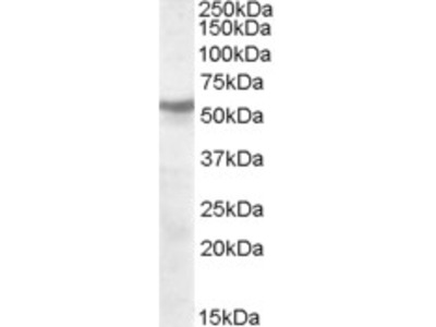 Goat Anti-CHRNB1 / ACHRB Antibody