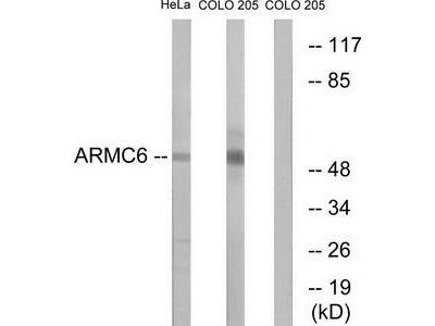 Rabbit polyclonal anti-ARMC6 antibody