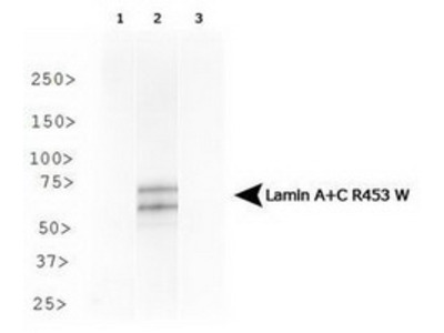 Mouse Monoclonal Lamin A + C R453W Antibody (12A-2F5)