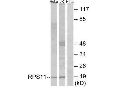Rabbit polyclonal anti-RPS11 antibody