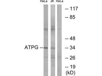 Rabbit polyclonal anti-ATPG antibody