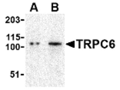Rabbit Polyclonal TRPC6 Antibody