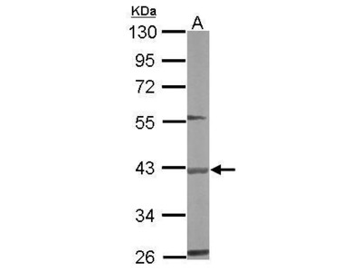 Rabbit Polyclonal antibody to BBOX1 (butyrobetaine (gamma), 2-oxoglutarate dioxygenase (gamma-butyrobetaine hydroxylase) 1)