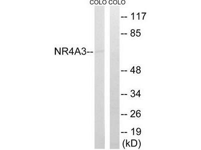 Rabbit polyclonal anti-NR4A3 antibody