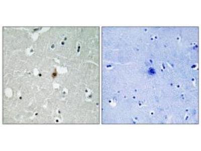 Rabbit polyclonal anti-Transcription Factor 3 (E2A Immunoglobulin Enhancer Binding Factors E12/E47) antibody