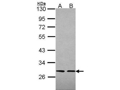 Rabbit Polyclonal antibody to Slap (Src-like-adaptor)