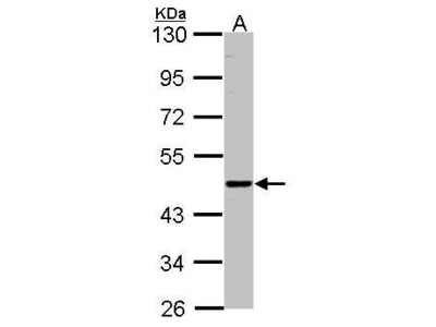 Rabbit Polyclonal antibody to ENTPD6 (ectonucleoside triphosphate diphosphohydrolase 6 (putative function))