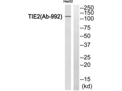 Rabbit polyclonal TIE2 (Ab-992) antibody