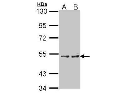 Rabbit polyclonal antibody to Cytochrome P450 4A11 (cytochrome P450, family 4, subfamily A, polypeptide 11)