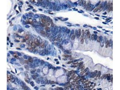 Rabbit Polyclonal Chd7 Antibody