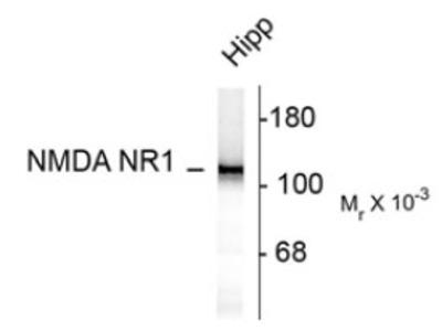 Mouse Anti-NMDA NR1 Subunit Antibody