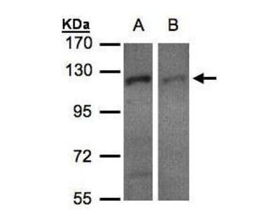 Rabbit Polyclonal antibody to RanBP16 (exportin 7)