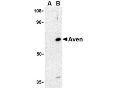 Rabbit Polyclonal Aven Antibody