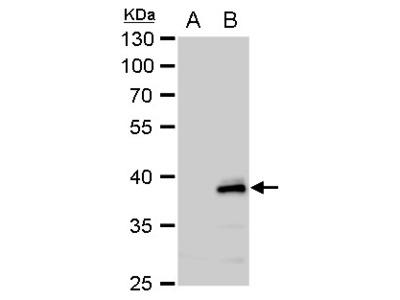 Rabbit Polyclonal antibody to YKL-39 (chitinase 3-like 2)