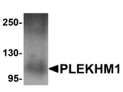 Rabbit Polyclonal PLEKHM1 Antibody
